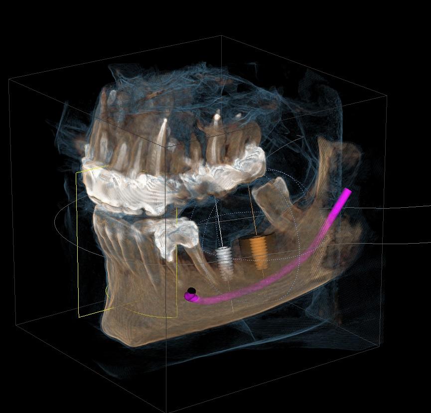 tac radiologia radiografia 3d studio dentistico laveno mombello